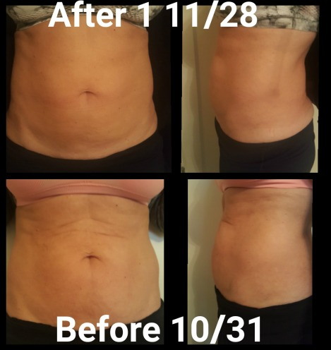 Before and After Exilis Fat Melting Treatment on Abdomen