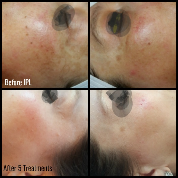 Before and After IPL Treatment