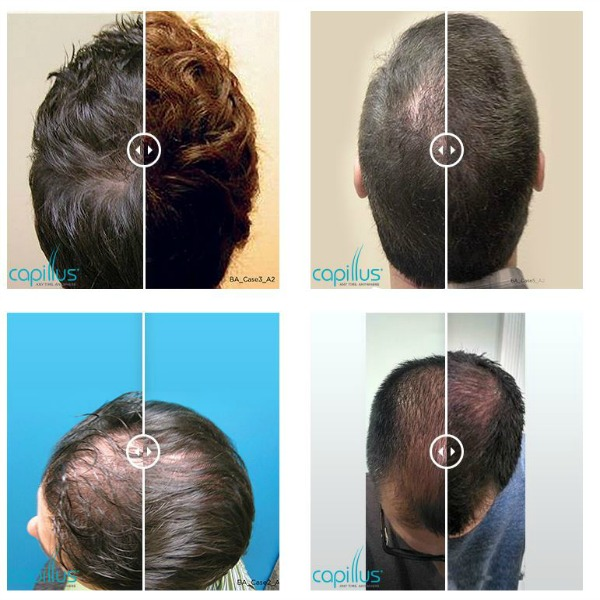 Men Before and After Capillus Hair Loss Treatment