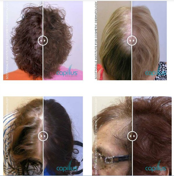 Women Before and After Capillus Hair Loss Treatment